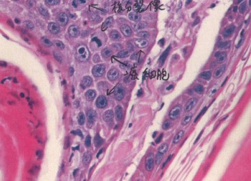 1906cat-squamous-cell